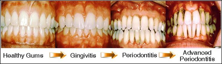 gingivitis: cause, prevention, treatment, Skeleton