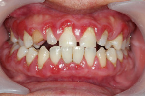 swollen gums treatment